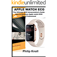 Apple Watch ECG: The Ultimate ECG Interpretation's Guide; How to Analyze Apple Watch ECG like a Professional