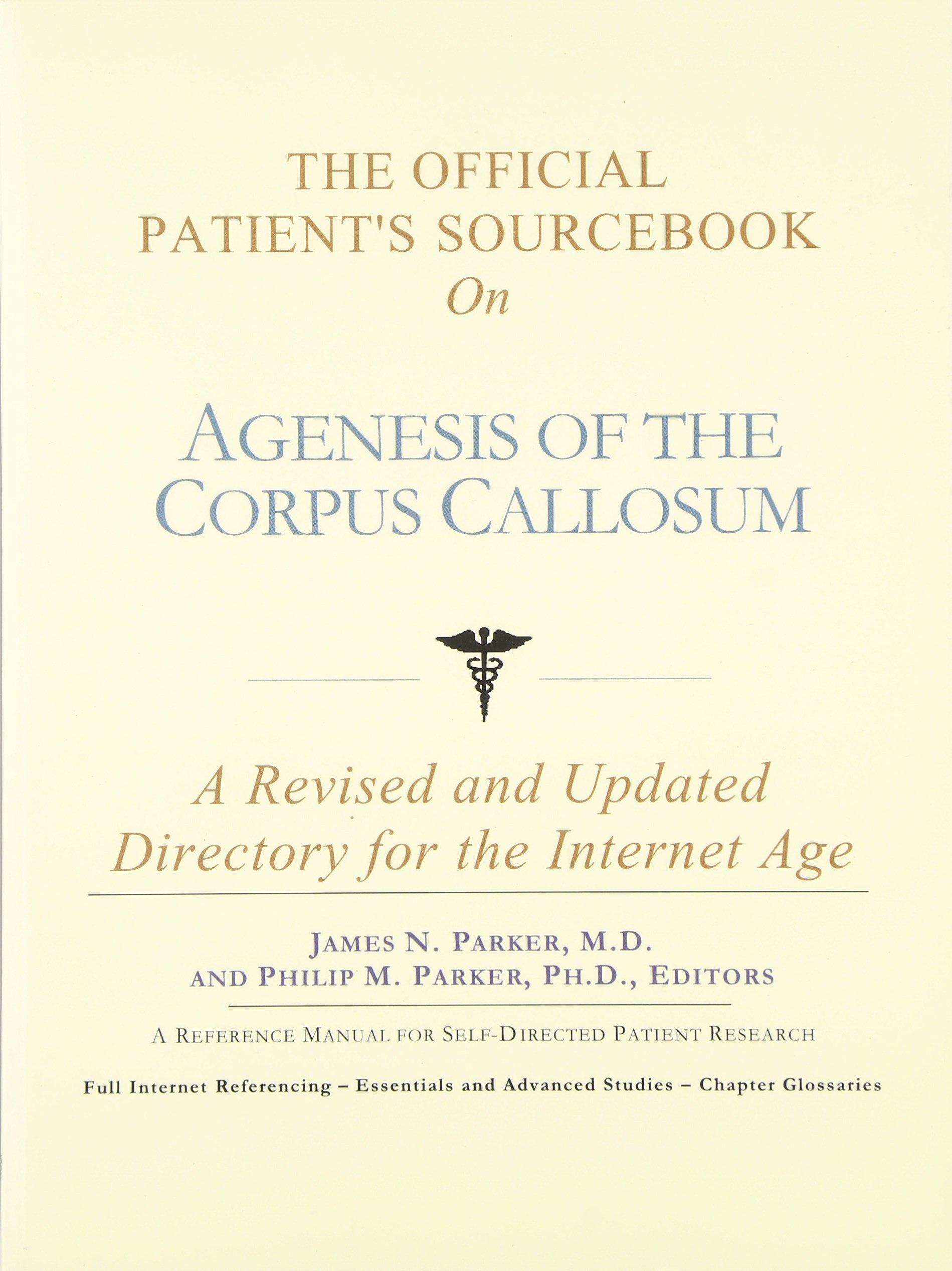 Agenesis of corpus callosum pictures of wedding