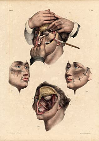 Amazon.com: Antique Medical Anatomy Print-RESECTION-UPPER JAW-Pl. 64 ...