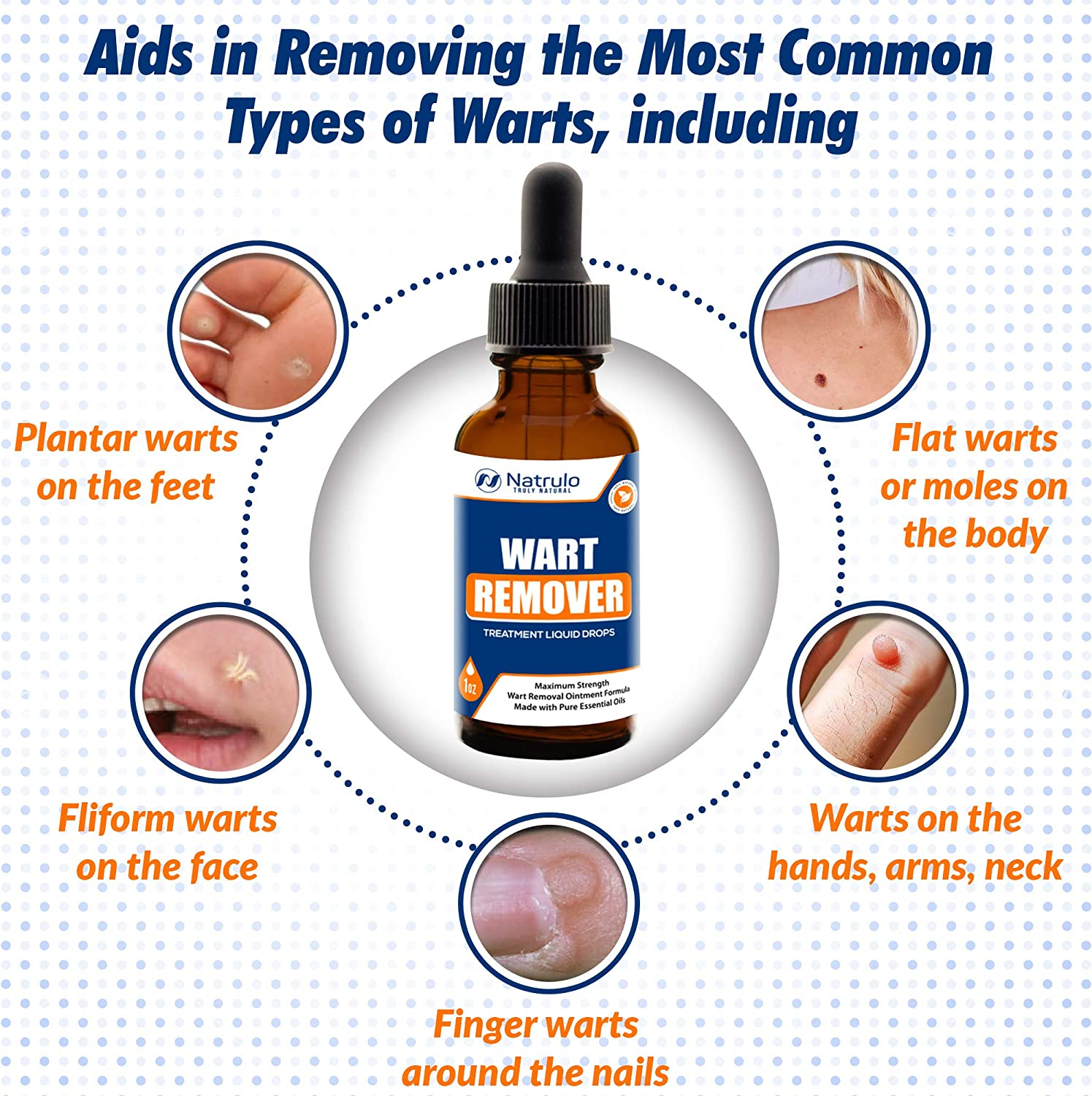 Wart on foot with black center - filme-indiene.ro - Papilloma foot removal