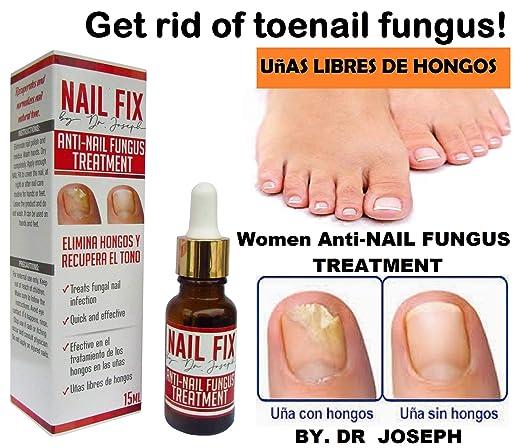 Amazon.com: Antifungal Get rid of toenail fungus Uñas libres de ...
