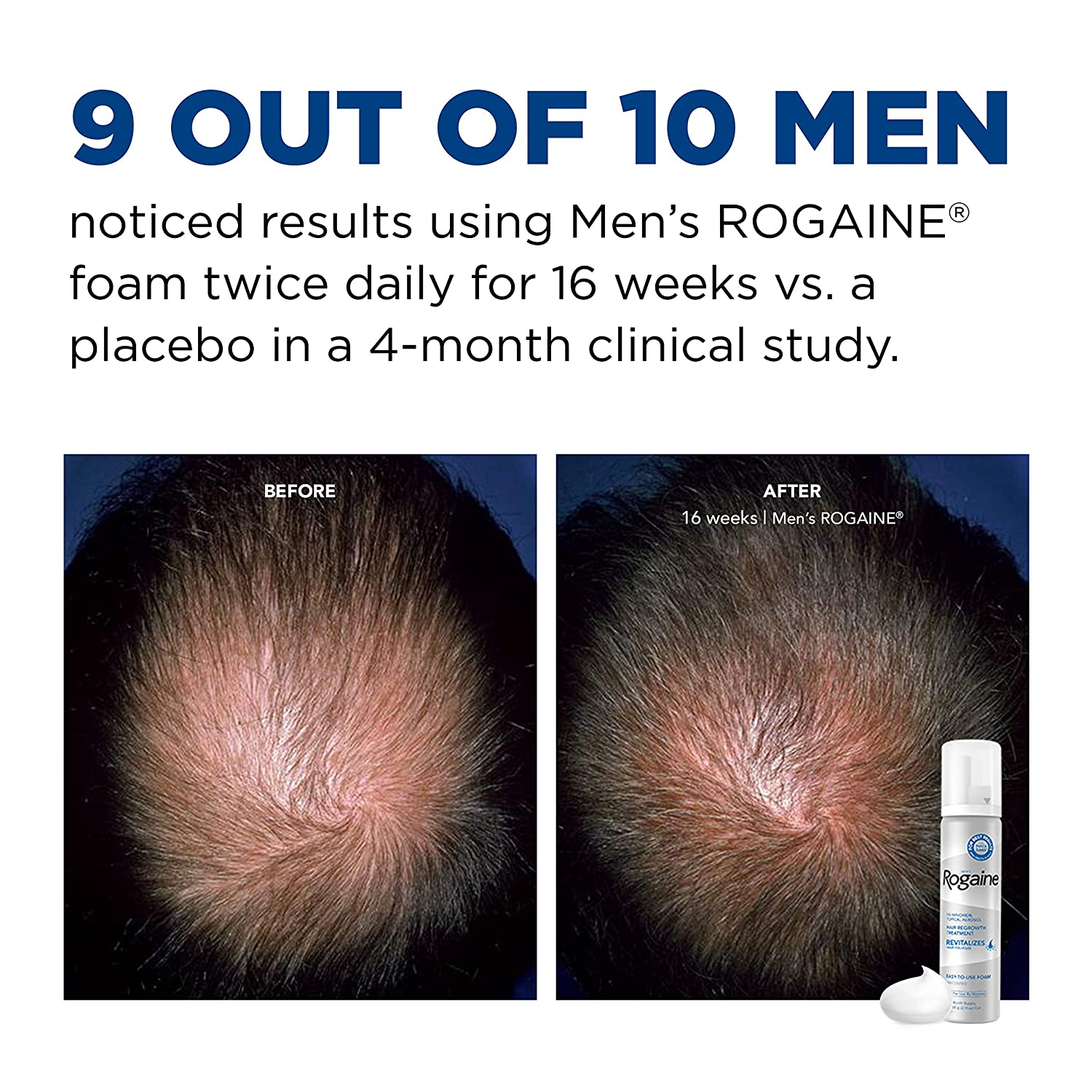 Men's Rogaine 5% Minoxidil Foam for Hair Loss and Hair Regrowth, Topical Treatment for Thinning Hair, 3-Month Supply, 2.11 Ounce (Pack of 3) : Beauty