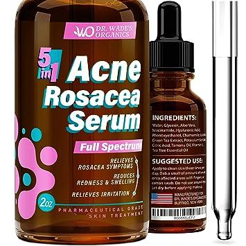 Amazon Com Acne Treatment Serum Natural Skin Care Serum For