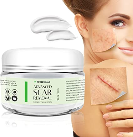 Amazon Com Puriderma Scar Removal Cream Advanced Treatment For