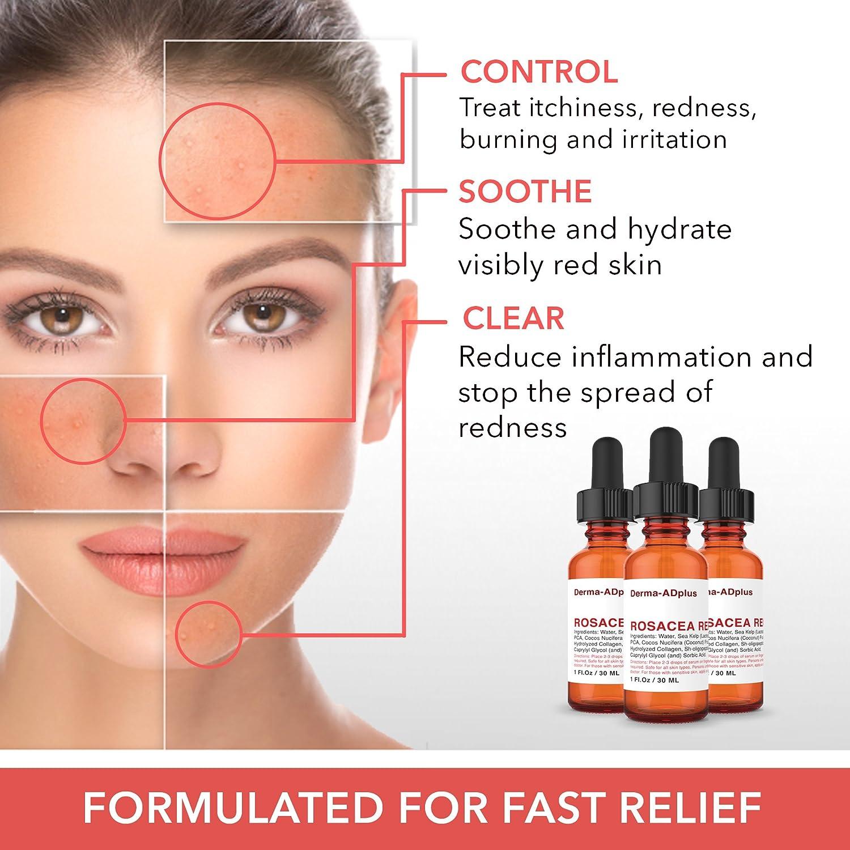 Rosacea Treatment For Face Skin Redness Premium 55