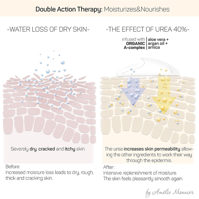 urea effect on skin