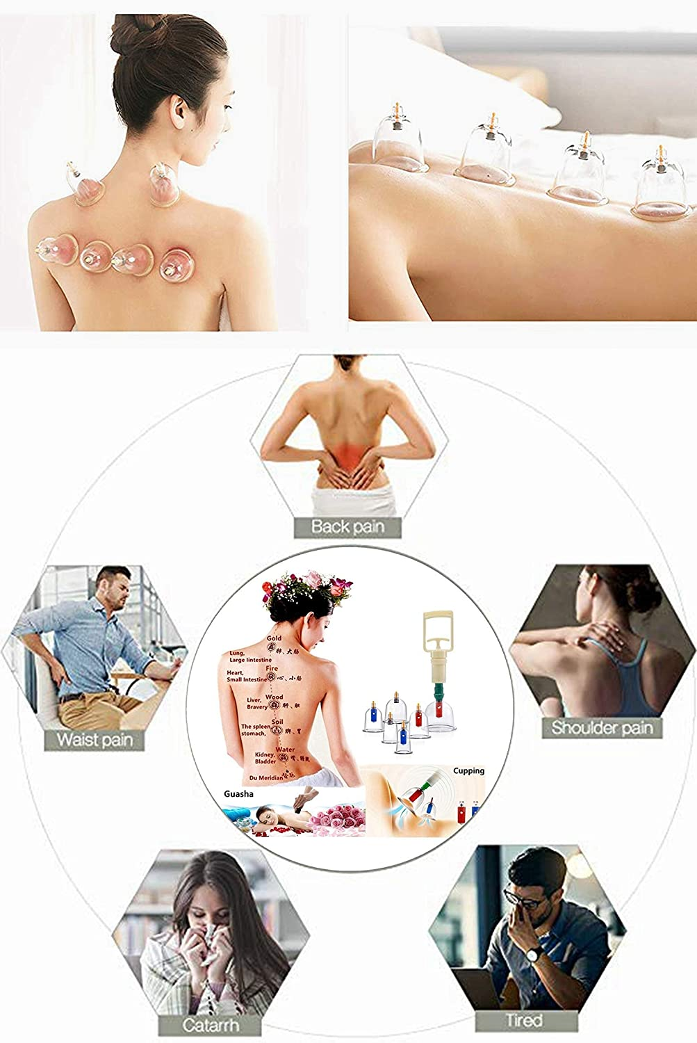 Med SPA Care Handheld Vacuum Cupping Set/Head Massager/Full Body Massager/Best Fat Burnersr- Chinese Ancient Acupuncture Therapy for Back Pain, Lose Belly Fat Fast, Value Gifts (Luxury 24-Cups Set): Sports & Outdoors