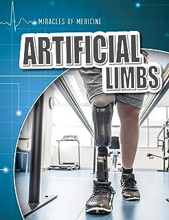 Artificial Limbs (Miracles of Medicine)