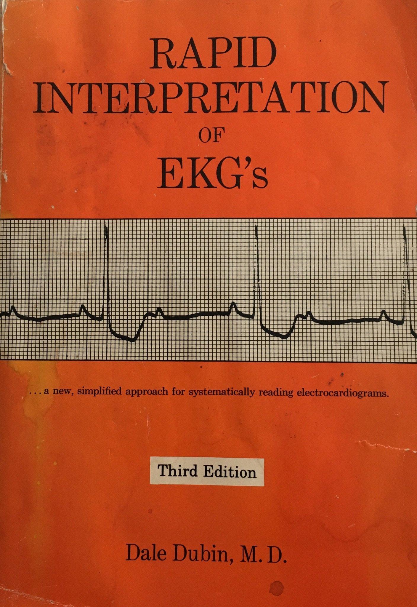 EKG Definition