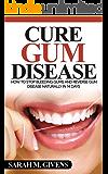 Gum Disease Cure (Gum Disease Cure, Periodontal Disease, Gum Disease, Gum Infection, Gingivitis treatment, Tooth Decay)