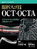 眼科スゴ技 OCT・OCTA: エキスパートの読影術で診断力アップ! (眼科グラフィック2019年別冊)