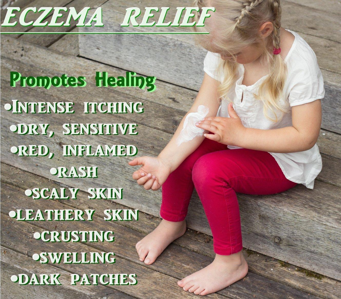 Baby Eczema Relief Cream (64oz)