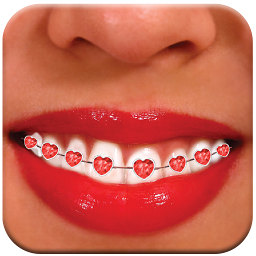 Braces B624:Braces Photo Booth (Bracket Gallery Collection)