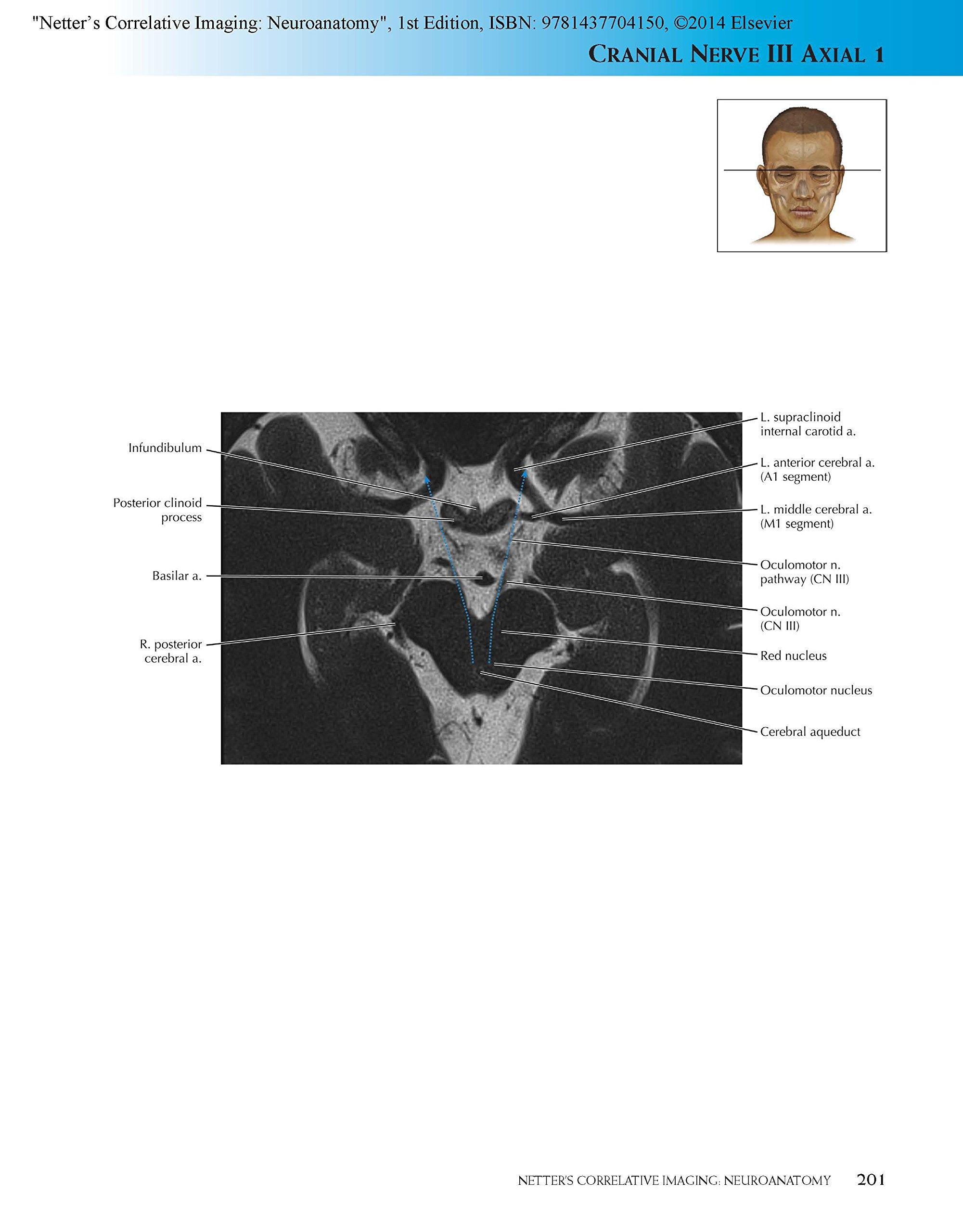 Buy Netter S Correlative Imaging Neuroanatomy With Netterreference