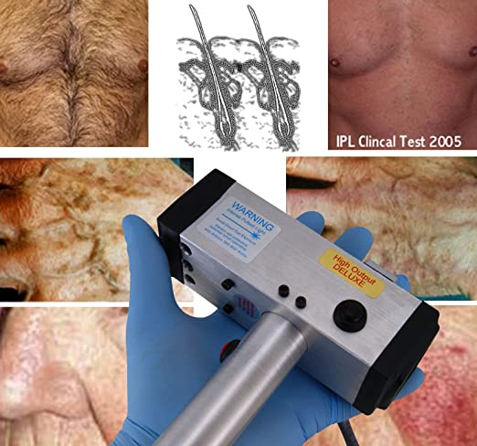 Amazon.com: Permanente IPL intenso pulsado pelo láser, tatuaje, cicatriz, vena, sistema de eliminación de pigmento equipo de la máquina.