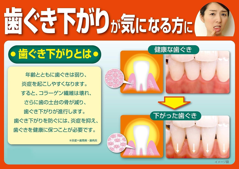 炎 歯肉 違い 歯 周 炎