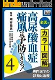 名医がカラー図解! 高尿酸血症・痛風は予防できる! (4) 専門医での診断と治療 (impress QuickBooks)