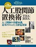 人工股関節置換術[THA・BHA]: 写真・WEB動画で理解が深まる/人工関節の基礎知識,基本テクニック,合併症対策 (整形外科SURGICAL TECHNIQUE BOOKS)