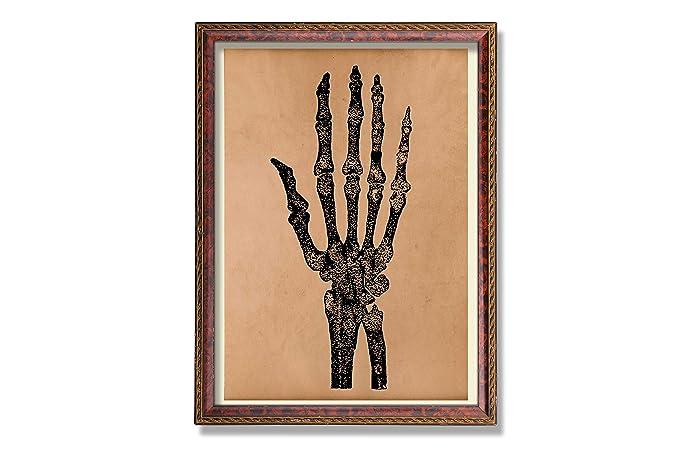 Amazon Skeleton Print Arm Poster Hand Decor Antique Anatomy Art