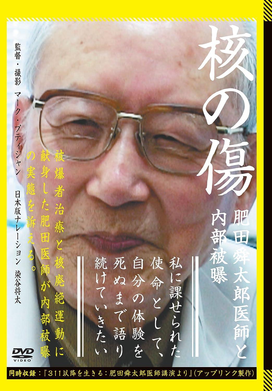 Amazon   核の傷:肥田舜太郎医師...