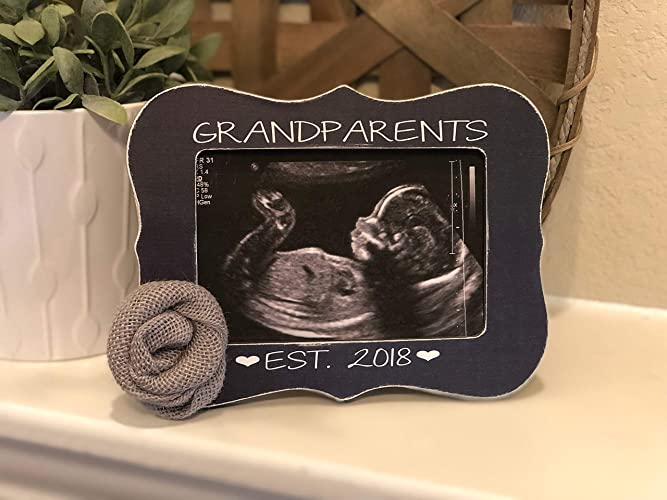 Amazoncom Love At First Sight Ultrasound Picture Sonogram