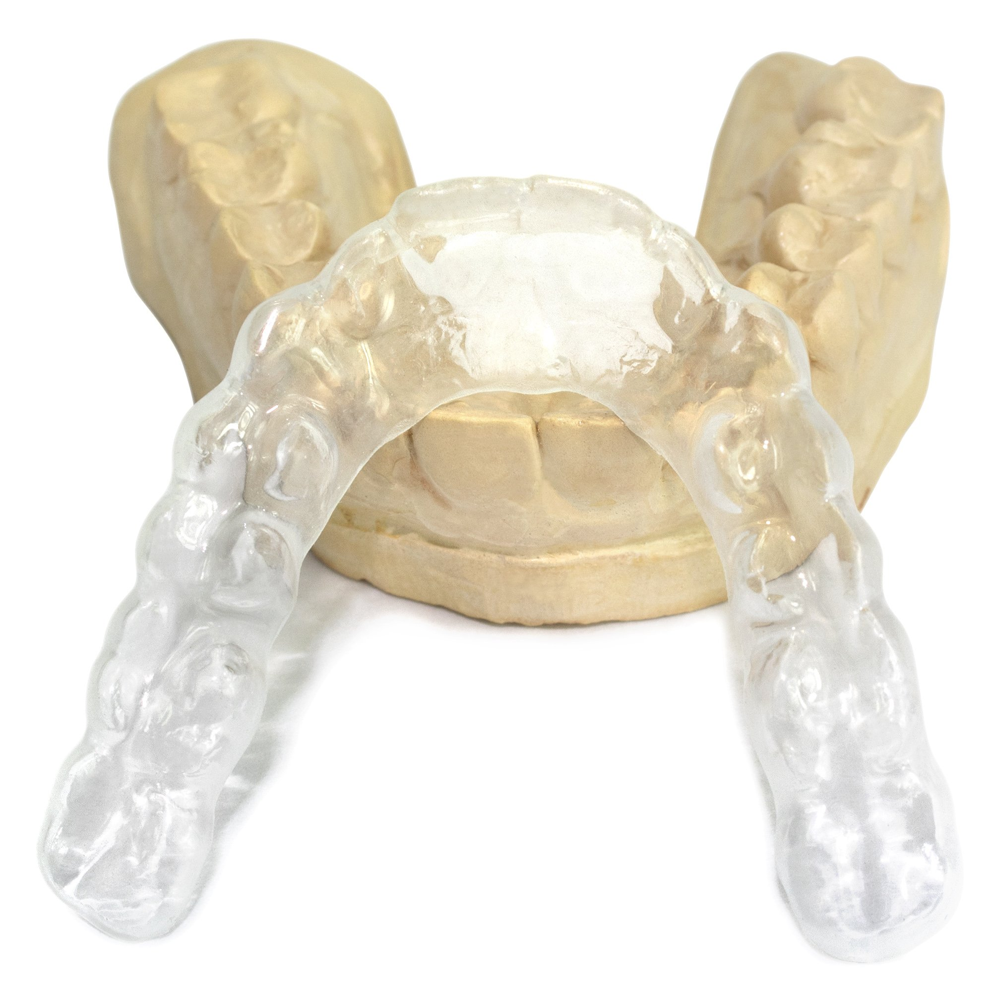 P & J Health Custom Mouth Guard for Teeth Grinding & Bruxism (Upper, Transparent)