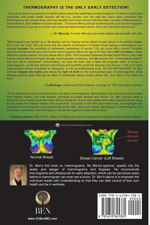 Radical Rethink on Mammograms: Dr. Ben Johnson: 9781619845381: Amazon.com:  Books