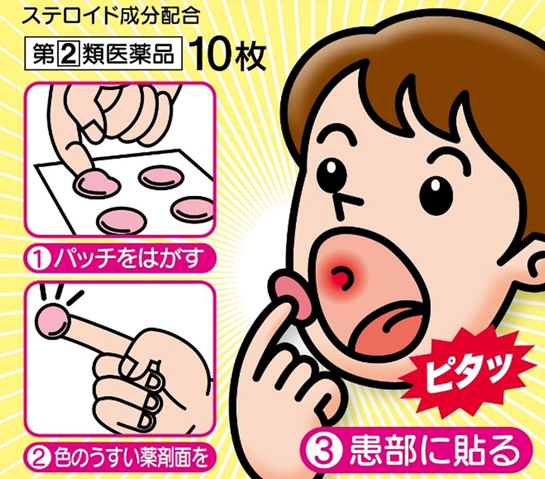 口內炎貼片