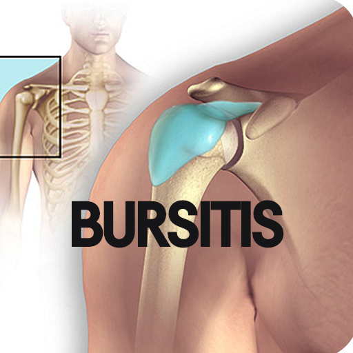 Bursitis Disease (Best Over The Counter Medicine For Back Muscle Pain)
