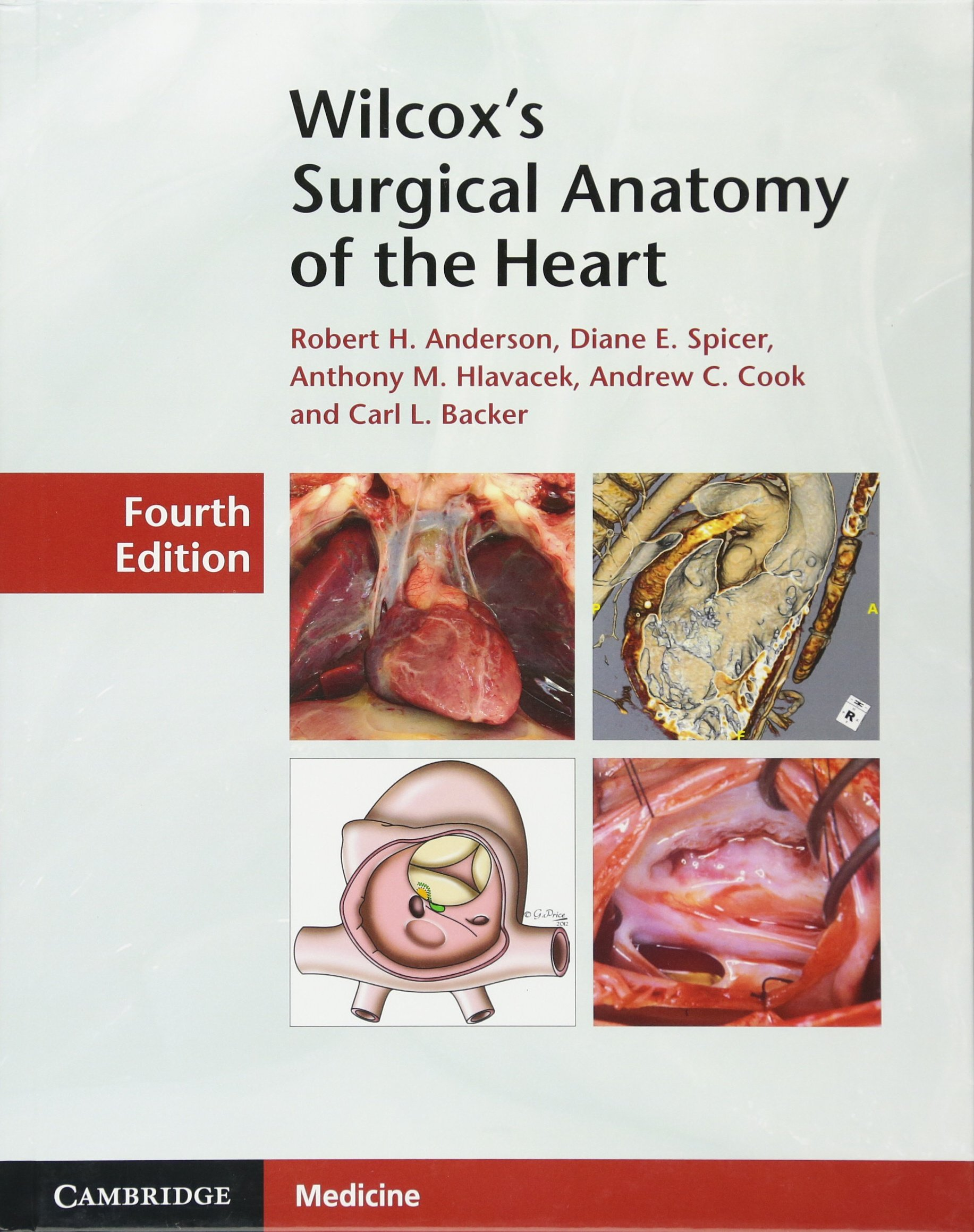 Wilcox\'s Surgical Anatomy of the Heart: Amazon.co.uk: Robert H ...