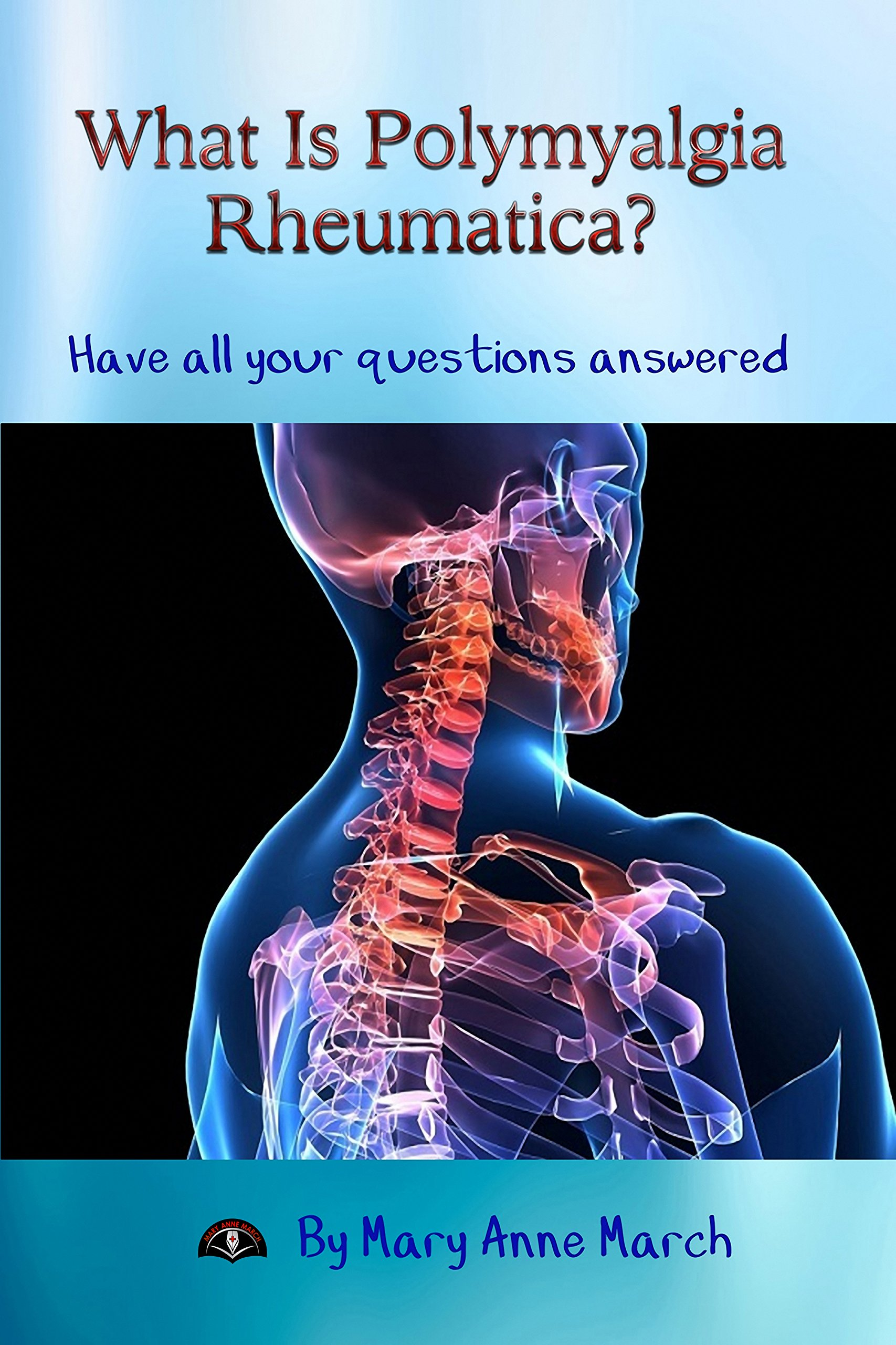What Is Polymyalgia Rheumatica  Have All Your Questions Answered.  English Edition