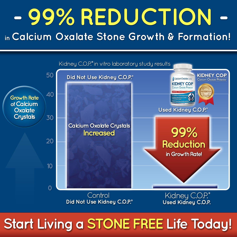 Amazon Kidney Cop Calcium Oxalate Protector 120 Capsules