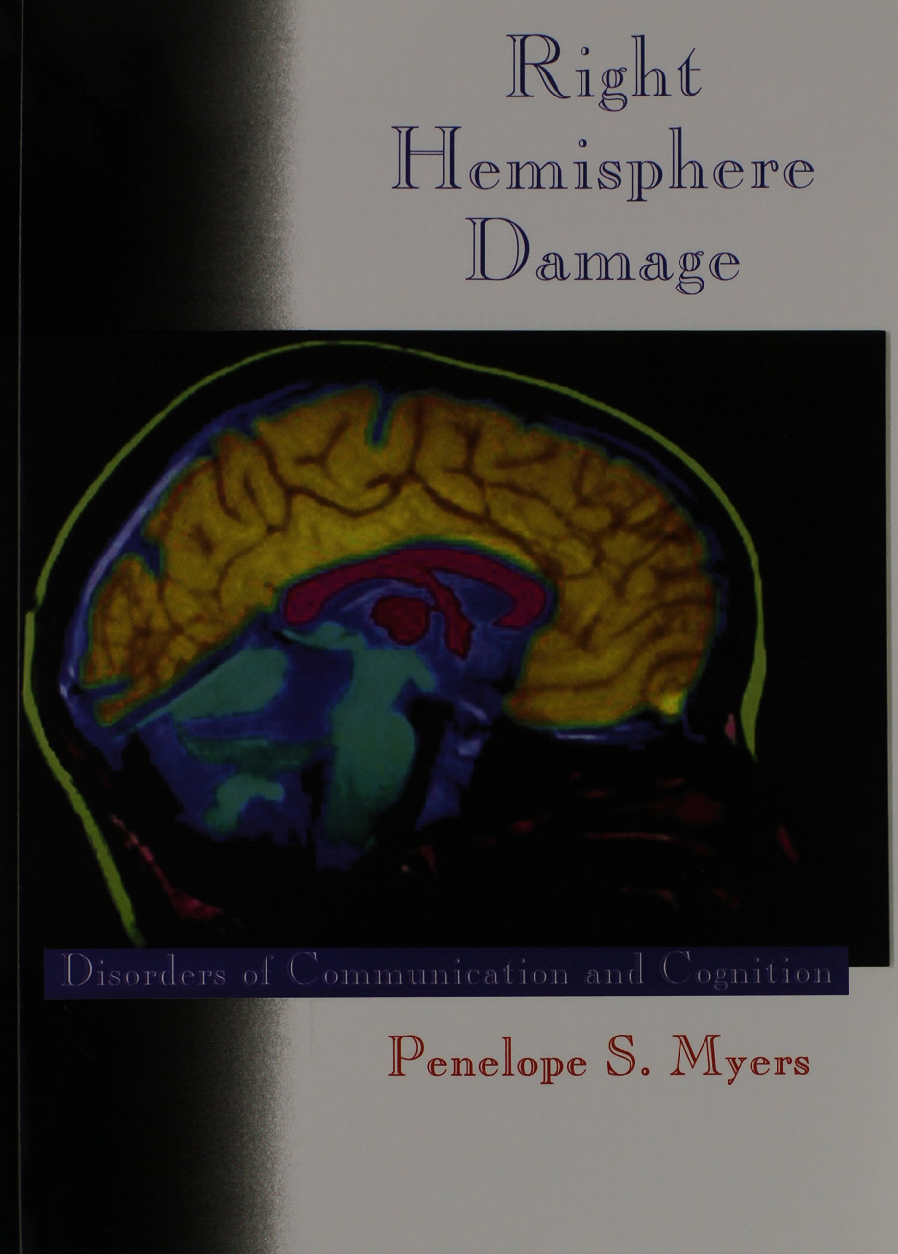 Right Hemisphere Damage: Disorders of Communication and Cognition
