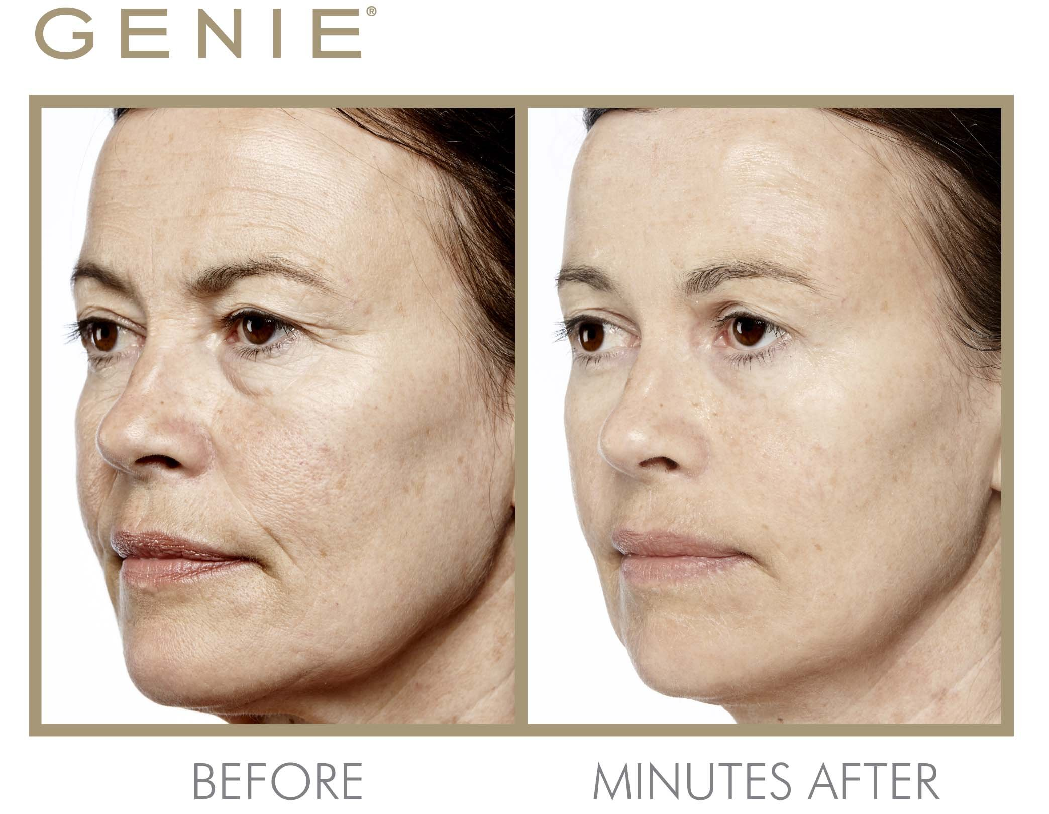 Genie Instant Line Smoother by Genie Beauty Products (Image #5)