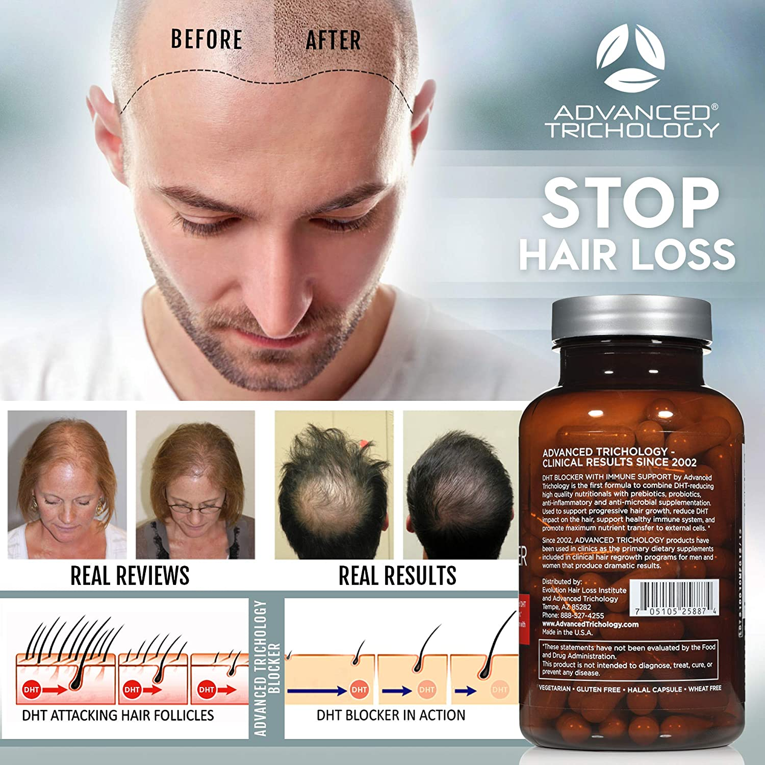 DHT Blocker with Immune Support - Hair Loss Supplements, High Potency Saw  Palmetto, Green Tea