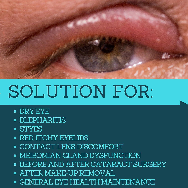 Amazon Hypochlorous Acid Eyelid Cleanser Spray Heyedrate Lid