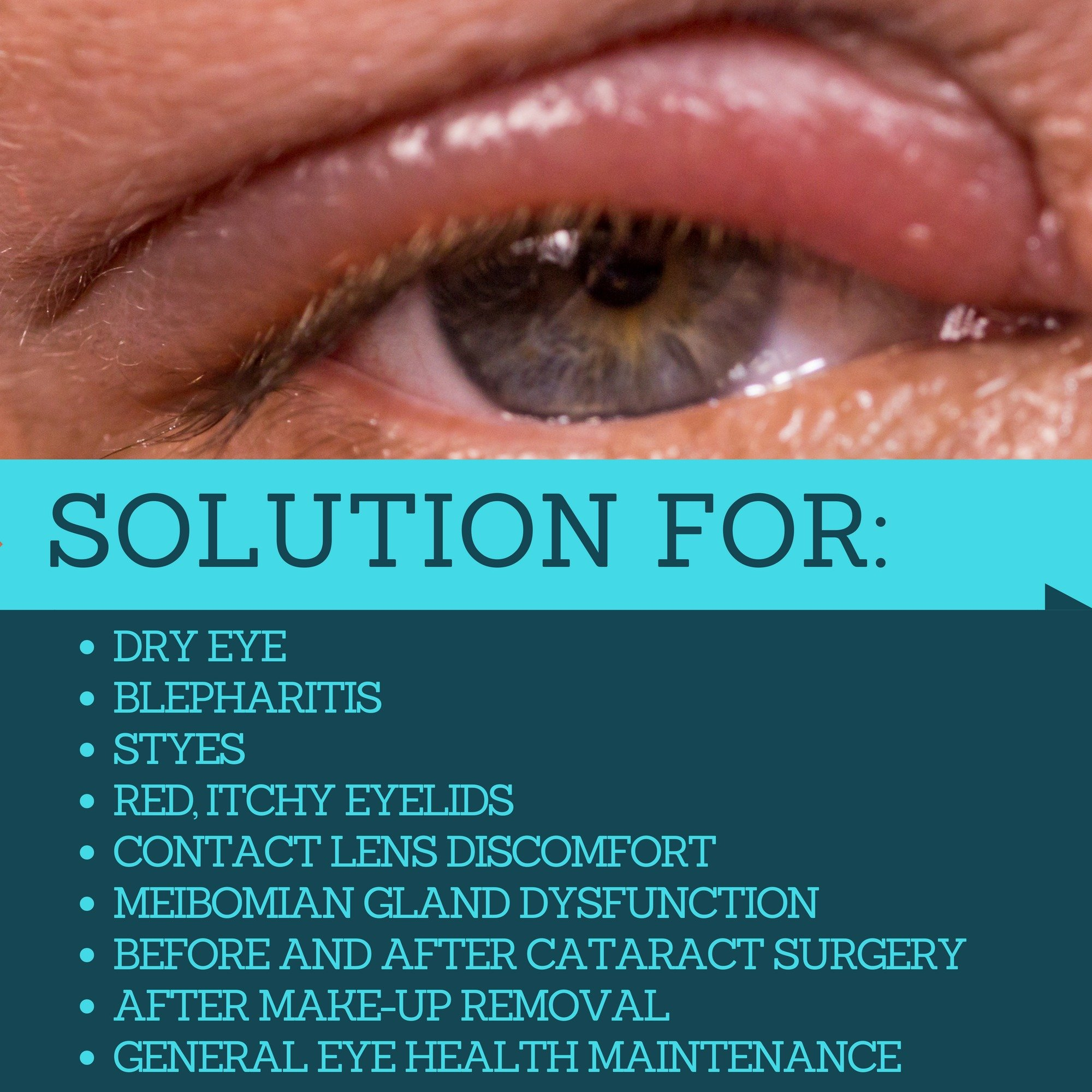 Hypochlorous Acid Eyelid Cleanser Spray - Heyedrate Lid and Lash Cleanser for Relief of Styes, Blepharitis, Dry Eyes, Meibomian Gland Dysfunction, Rosacea, and Eye Irritation by Eye Love (Image #7)