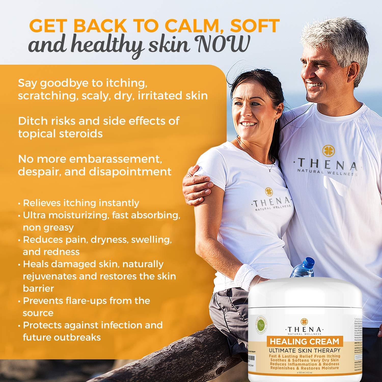 Best Healing Cream For Eczema Psoriasis Treatment