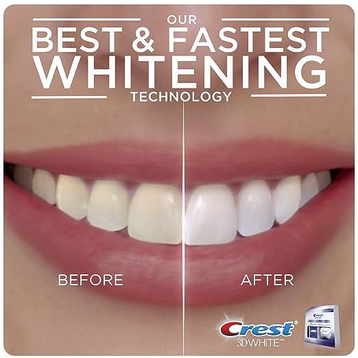 家里做牙齿护理!方便省钱 Crest 3D 美白牙贴10张+ 美白蓝光仪