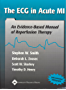 The ECG in Acute MI: An Evidence-Based Manual of Reperfusion Therapy (English Edition)