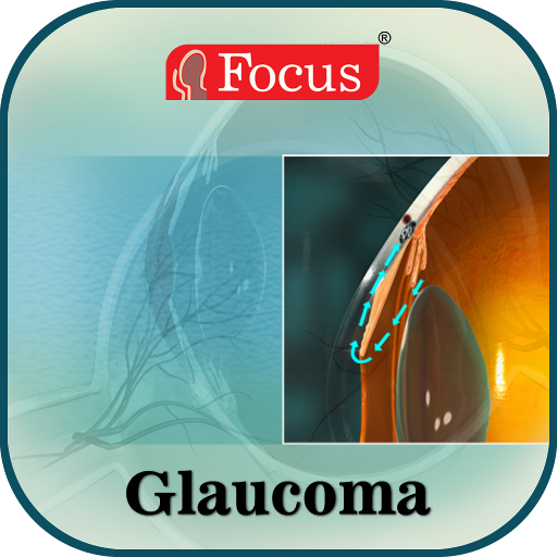 Glaucoma   An Overview