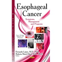 Esophageal Cancer: Symptoms, Management and Prognosis