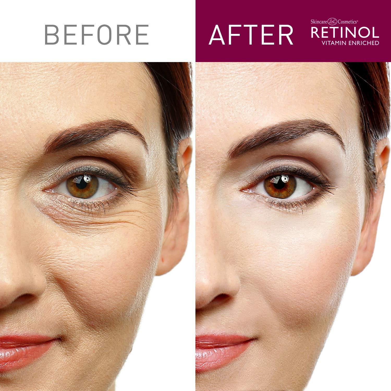 Retinol Anti-Aging Eye Gel Pads – The Original Retinol Instant De-Puff  Treatment – Soothing Vitamin A