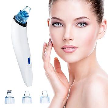 Zondr Blackhead Remover Vacuum - Pore Cleaner Pimple Popper Electric USB  Comedo Suction