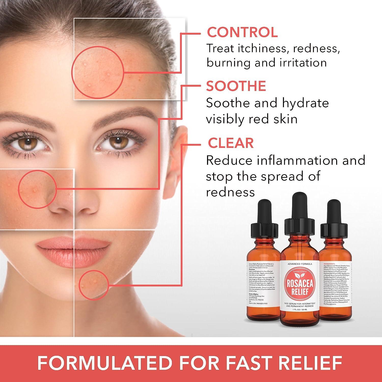How To Degrade Skin Redness Fast