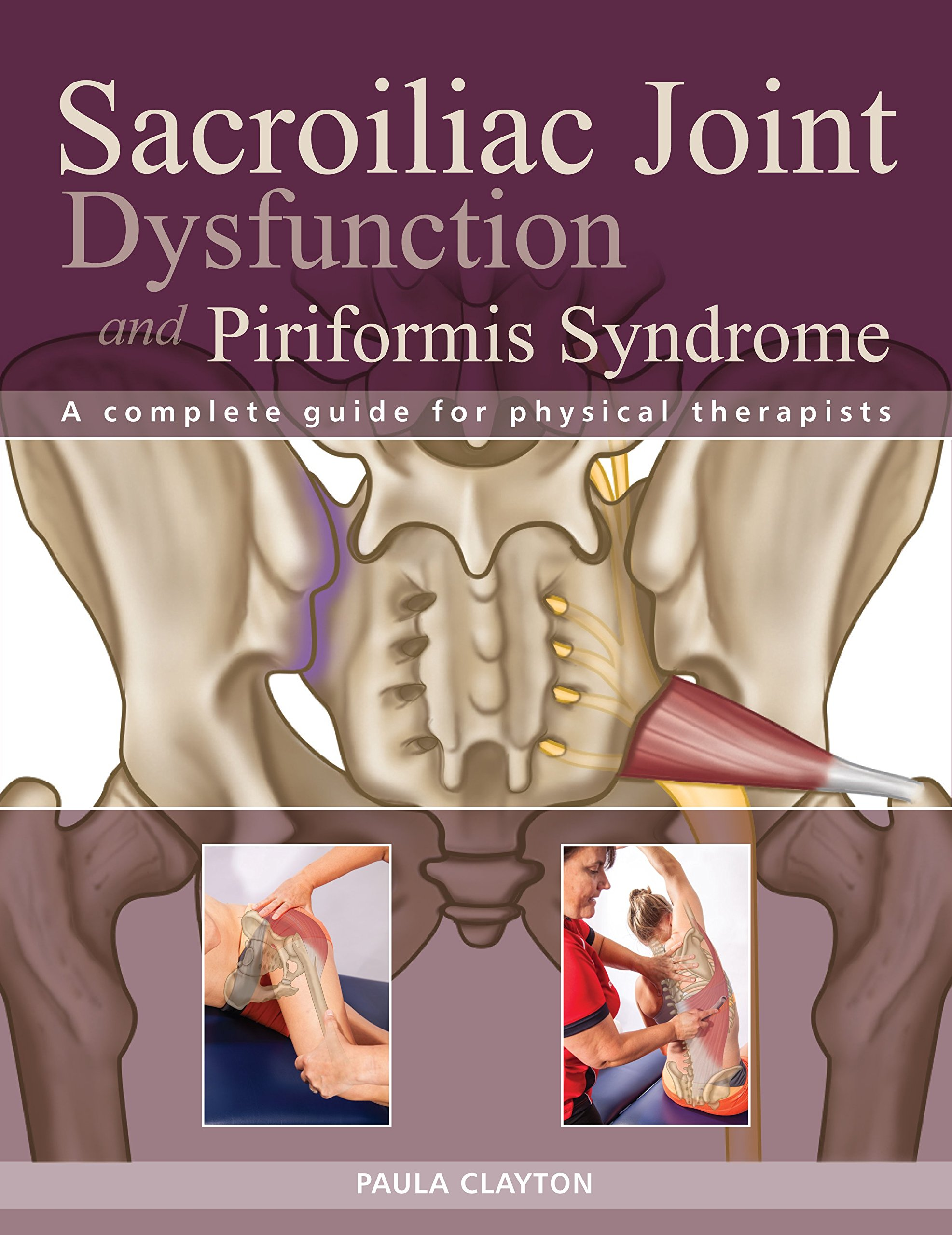 Sacroiliac Joint Dysfunction and Piriformis Syndrome: The Complete ...