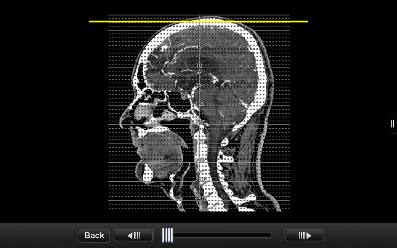 Interactive CT and MRIAnatomy: Amazon.com.au: Appstore for Android
