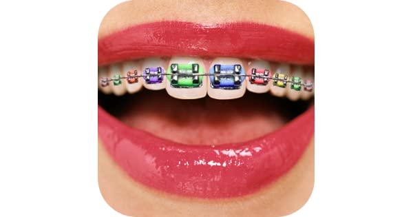 Amazon teeth braces booth appstore for android solutioingenieria Images