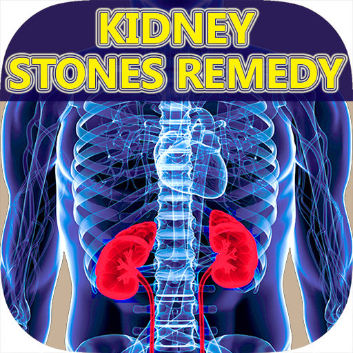 Kidney Stones - Symptoms, Signs, Pain & Treatment