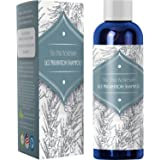 Honeydew Head Lice Treatment Shampoo - Tea Tree & Rosemary Lice Removal Hair Care for Men & Women Anti-Lice Essential…